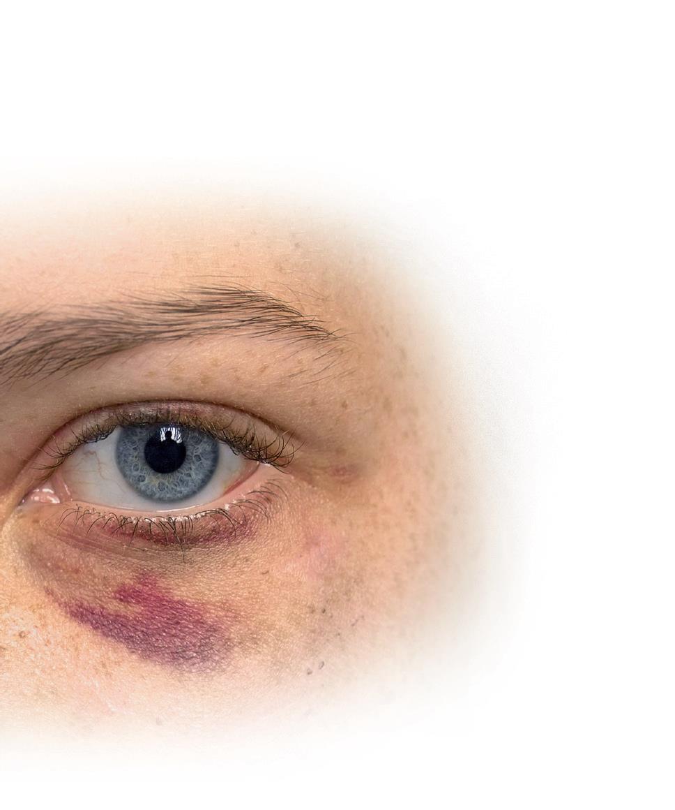 Odzivanje socialnih delavk in delavcev na nasilje v družini